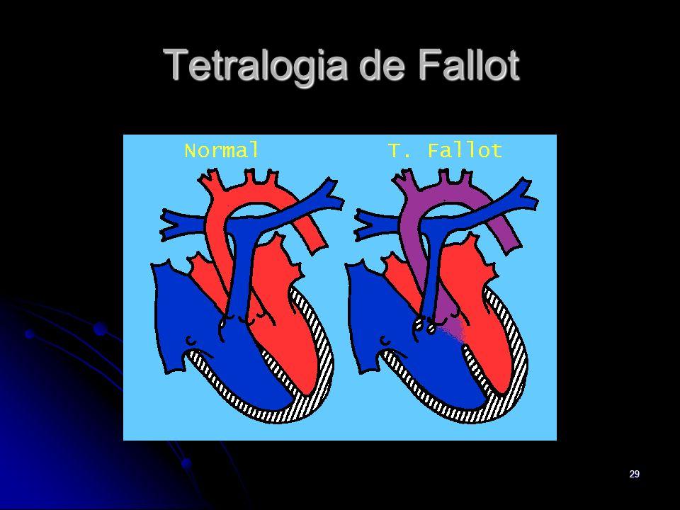 29 Tetralogia de Fallot