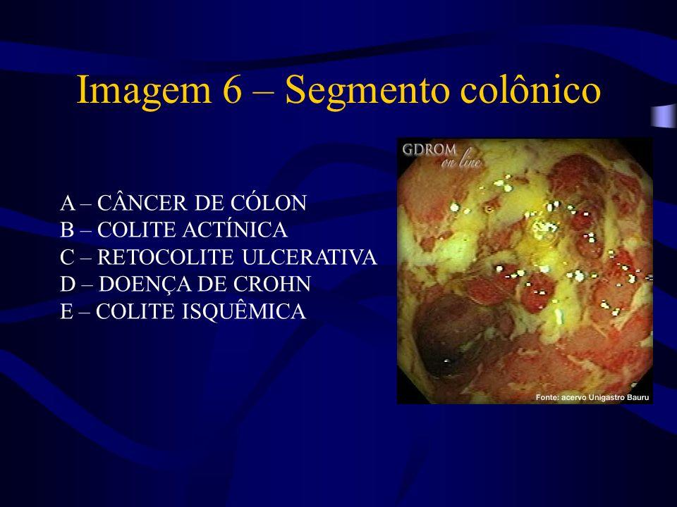 Imagem 6 – Segmento colônico A – CÂNCER DE CÓLON B – COLITE ACTÍNICA C – RETOCOLITE ULCERATIVA D – DOENÇA DE CROHN E – COLITE ISQUÊMICA
