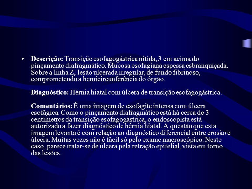 Descrição: Transição esofagogástrica nítida, 3 cm acima do pinçamento diafragmático. Mucosa esofagiana espessa esbranquiçada. Sobre a linha Z, lesão u