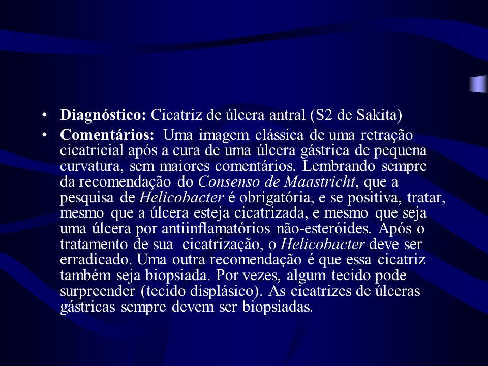 Diagnóstico: Cicatriz de úlcera antral (S2 de Sakita) Comentários: Uma imagem clássica de uma retração cicatricial após a cura de uma úlcera gástrica