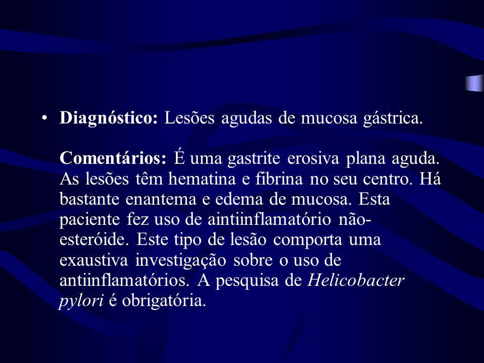 Diagnóstico: Lesões agudas de mucosa gástrica. Comentários: É uma gastrite erosiva plana aguda. As lesões têm hematina e fibrina no seu centro. Há bas
