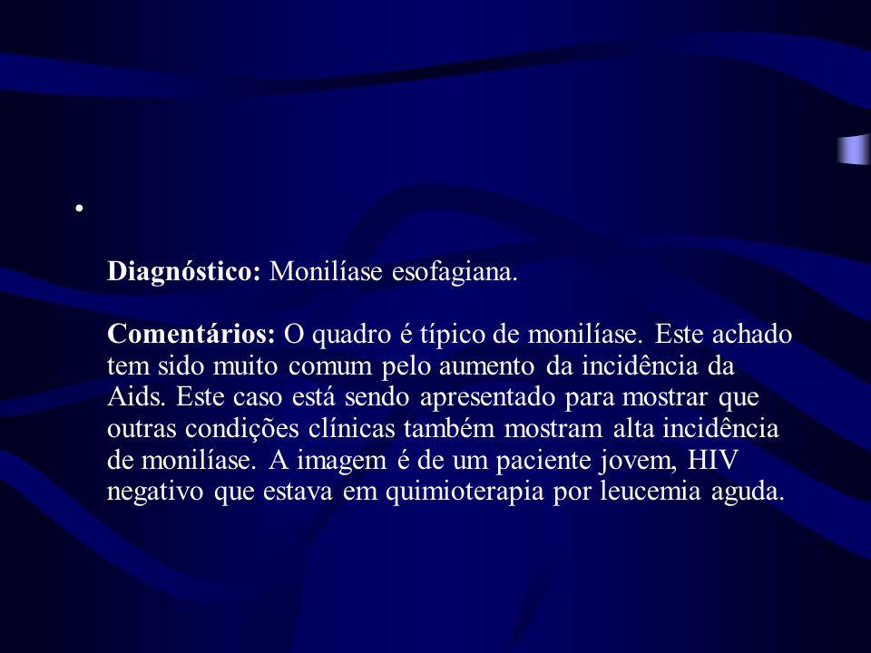 Diagnóstico: Monilíase esofagiana. Comentários: O quadro é típico de monilíase. Este achado tem sido muito comum pelo aumento da incidência da Aids. E