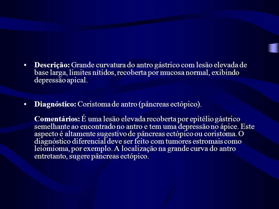 Imagem 2 – Retrovisão da TEG A – CÂNCER DE ESÔFAGO B – CARDITE C – HÉRNIA HIATAL COM ESOFAGITE GRAU A D – DIEULAFOY E – VARIZES DE FUNDO