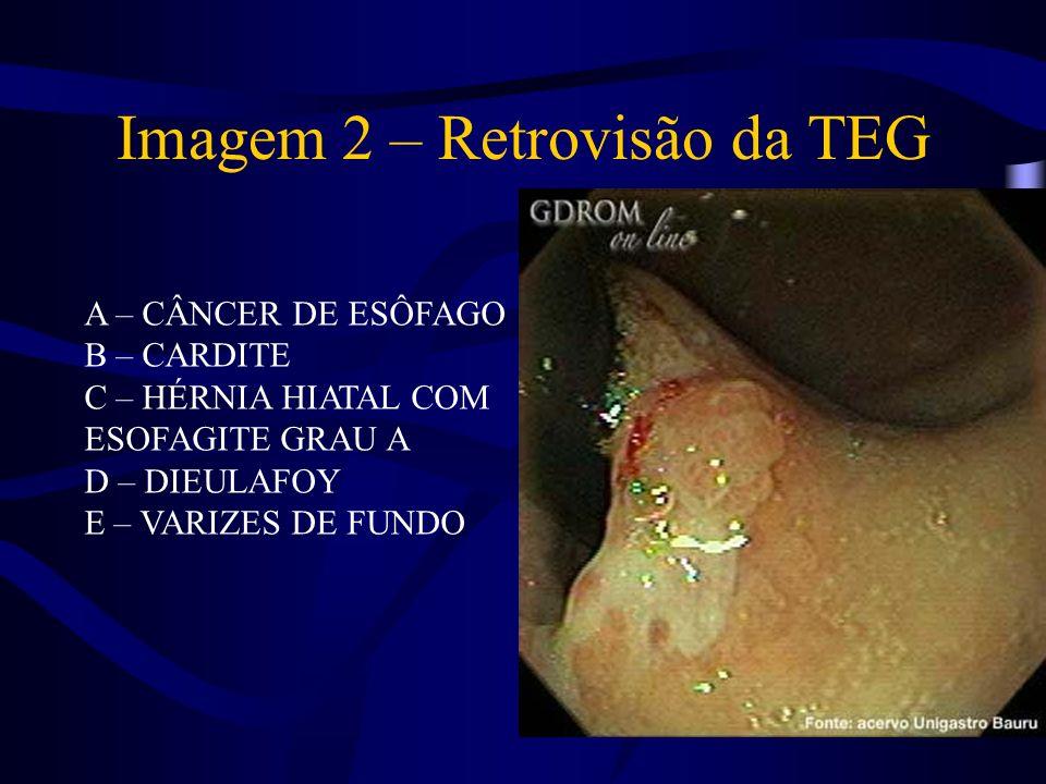 Descrição: Retrovisão de transição esofagogástrica, com áreas de mucosa mais elevada, ligeiramente enantemática, de aspecto viloso e com sangramento de contato.