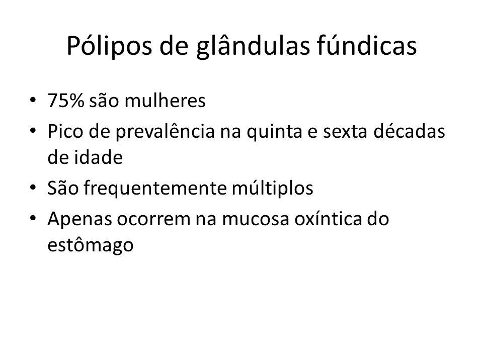 Pólipos de glândulas fúndicas 75% são mulheres Pico de prevalência na quinta e sexta décadas de idade São frequentemente múltiplos Apenas ocorrem na m