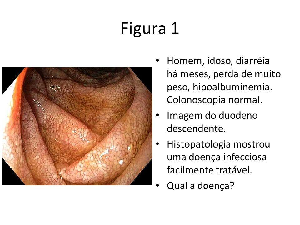 Figura 1 Homem, idoso, diarréia há meses, perda de muito peso, hipoalbuminemia. Colonoscopia normal. Imagem do duodeno descendente. Histopatologia mos