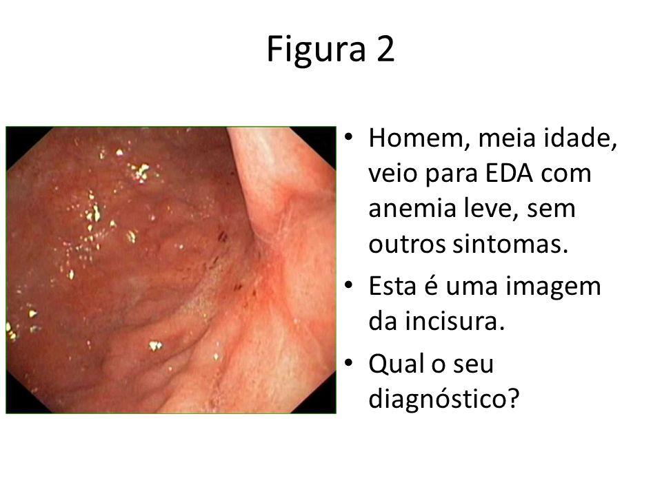 Figura 2 Homem, meia idade, veio para EDA com anemia leve, sem outros sintomas. Esta é uma imagem da incisura. Qual o seu diagnóstico?