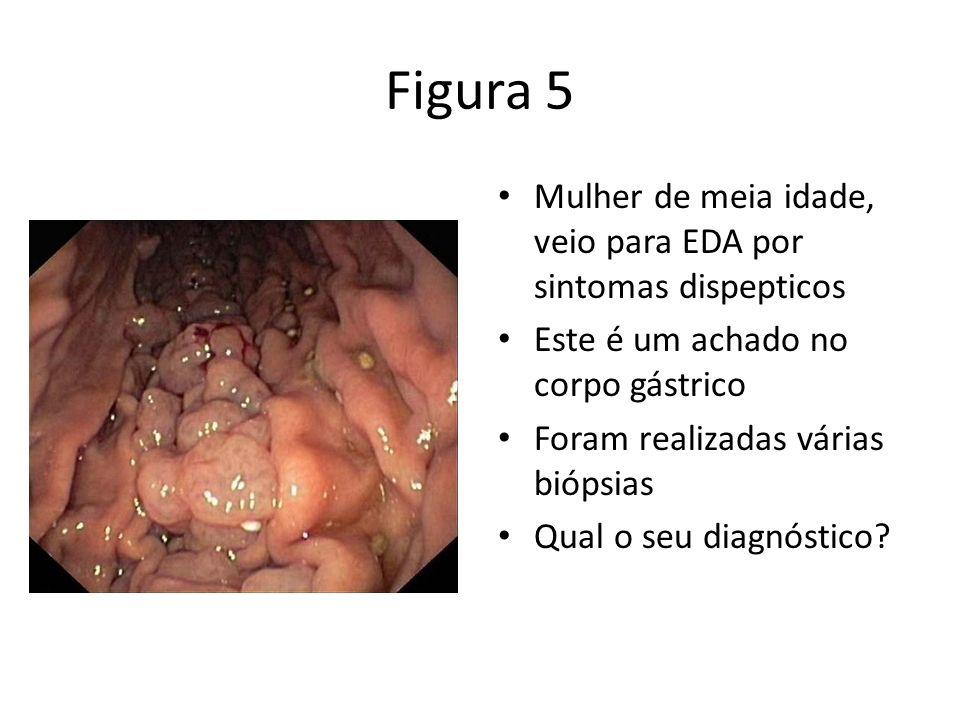 Figura 5 Mulher de meia idade, veio para EDA por sintomas dispepticos Este é um achado no corpo gástrico Foram realizadas várias biópsias Qual o seu d