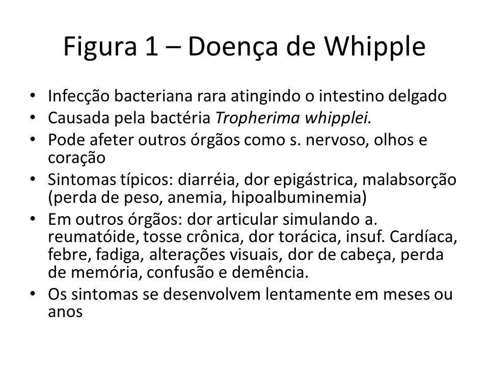Figura 1 – Doença de Whipple Infecção bacteriana rara atingindo o intestino delgado Causada pela bactéria Tropherima whipplei. Pode afeter outros órgã