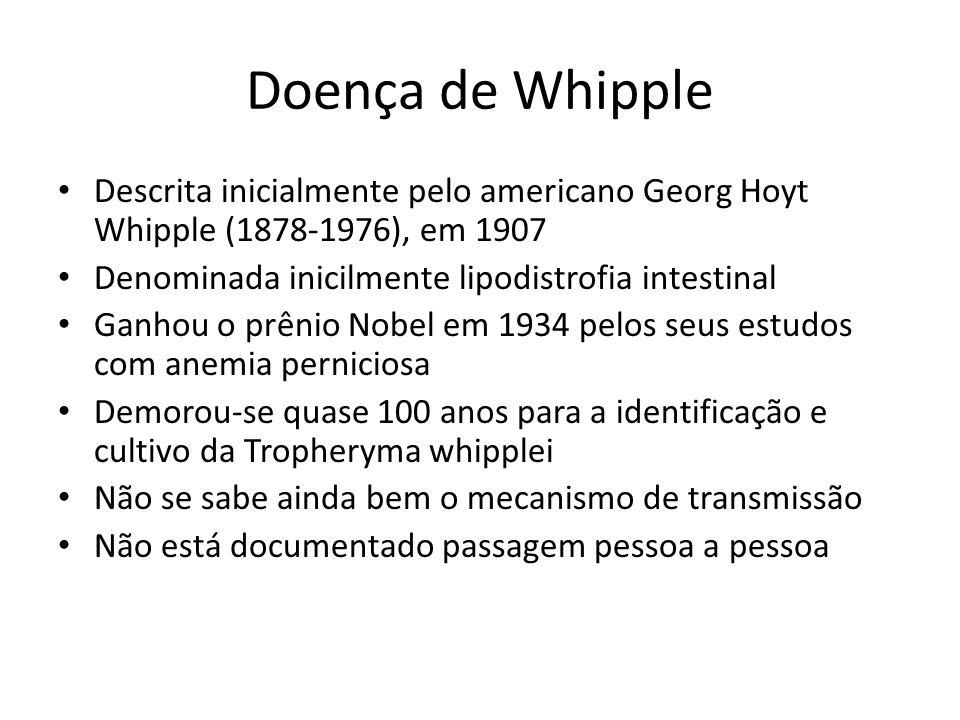 Doença de Whipple Descrita inicialmente pelo americano Georg Hoyt Whipple (1878-1976), em 1907 Denominada inicilmente lipodistrofia intestinal Ganhou