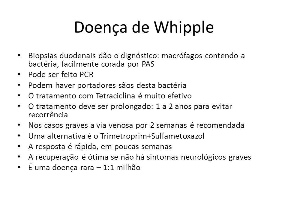 Doença de Whipple Biopsias duodenais dão o dignóstico: macrófagos contendo a bactéria, facilmente corada por PAS Pode ser feito PCR Podem haver portad