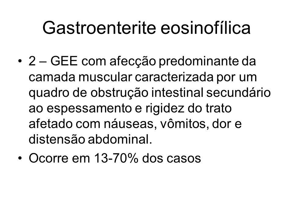 Gastroenterite eosinofílica 2 – GEE com afecção predominante da camada muscular caracterizada por um quadro de obstrução intestinal secundário ao espessamento e rigidez do trato afetado com náuseas, vômitos, dor e distensão abdominal.
