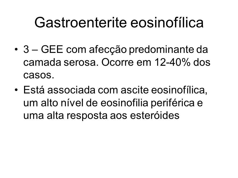 Gastroenterite eosinofílica 3 – GEE com afecção predominante da camada serosa. Ocorre em 12-40% dos casos. Está associada com ascite eosinofílica, um
