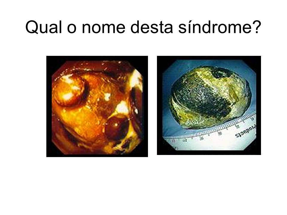 Qual o nome desta síndrome?
