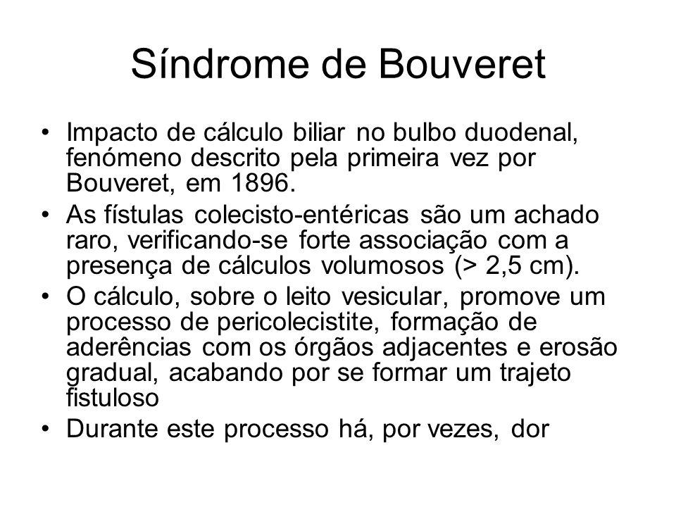 Síndrome de Bouveret É um fenómeno raro, existindo menos de 100 casos descritos na literatura, sendo mais frequente no idoso (idade média: 69 anos) e predominando no sexo feminino (3:1).