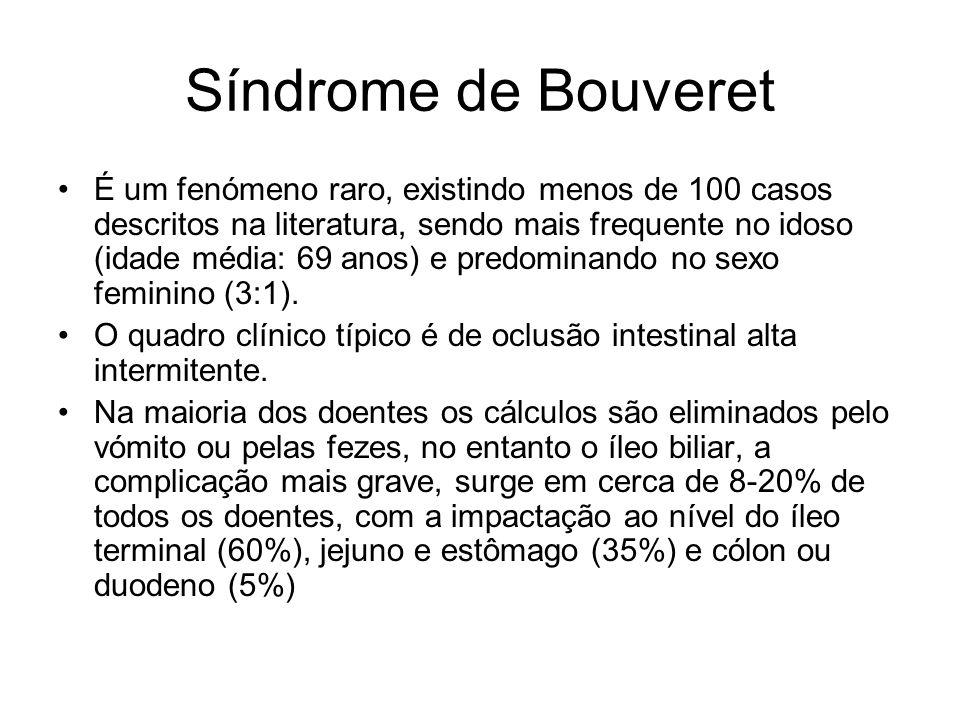 Síndrome de Bouveret É um fenómeno raro, existindo menos de 100 casos descritos na literatura, sendo mais frequente no idoso (idade média: 69 anos) e