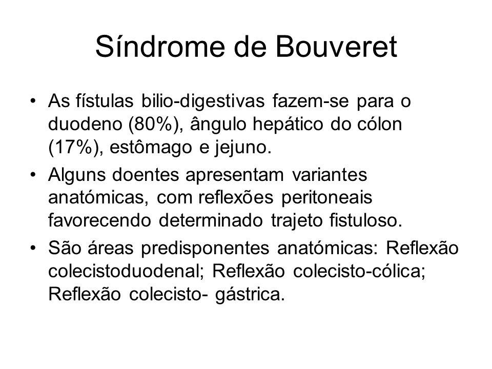 Síndrome de Bouveret As fístulas bilio-digestivas fazem-se para o duodeno (80%), ângulo hepático do cólon (17%), estômago e jejuno. Alguns doentes apr
