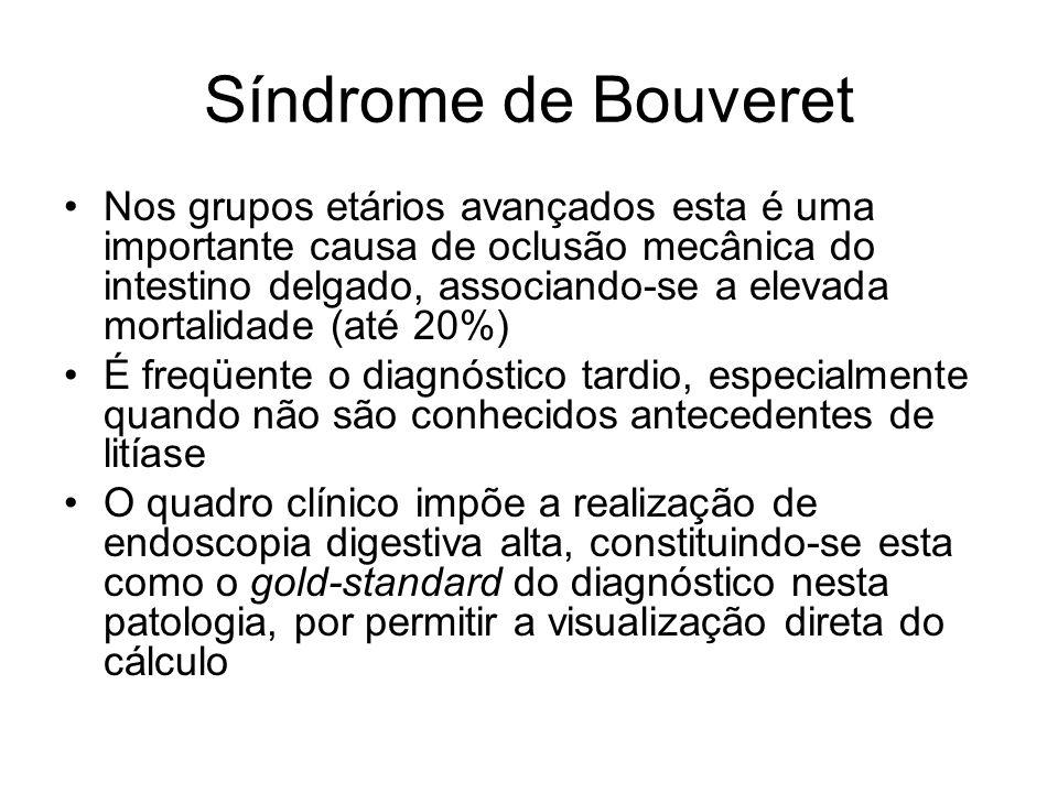 Síndrome de Bouveret Nos grupos etários avançados esta é uma importante causa de oclusão mecânica do intestino delgado, associando-se a elevada mortal