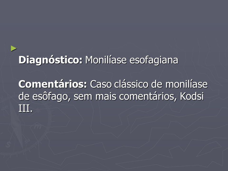Diagnóstico: Monilíase esofagiana Comentários: Caso clássico de monilíase de esôfago, sem mais comentários, Kodsi III. Diagnóstico: Monilíase esofagia