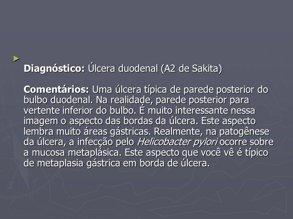 Diagnóstico: Úlcera duodenal (A2 de Sakita) Comentários: Uma úlcera típica de parede posterior do bulbo duodenal. Na realidade, parede posterior para
