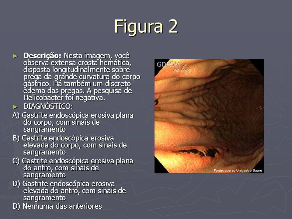 Figura 2 Descrição: Nesta imagem, você observa extensa crosta hemática, disposta longitudinalmente sobre prega da grande curvatura do corpo gástrico.