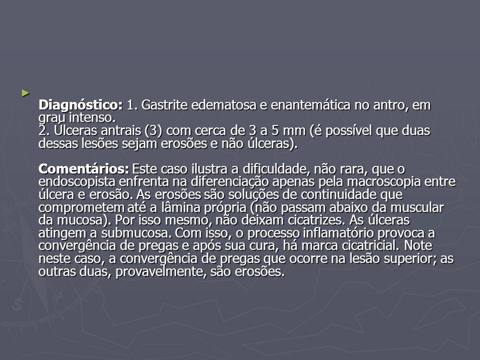 Diagnóstico: 1. Gastrite edematosa e enantemática no antro, em grau intenso. 2. Úlceras antrais (3) com cerca de 3 a 5 mm (é possível que duas dessas