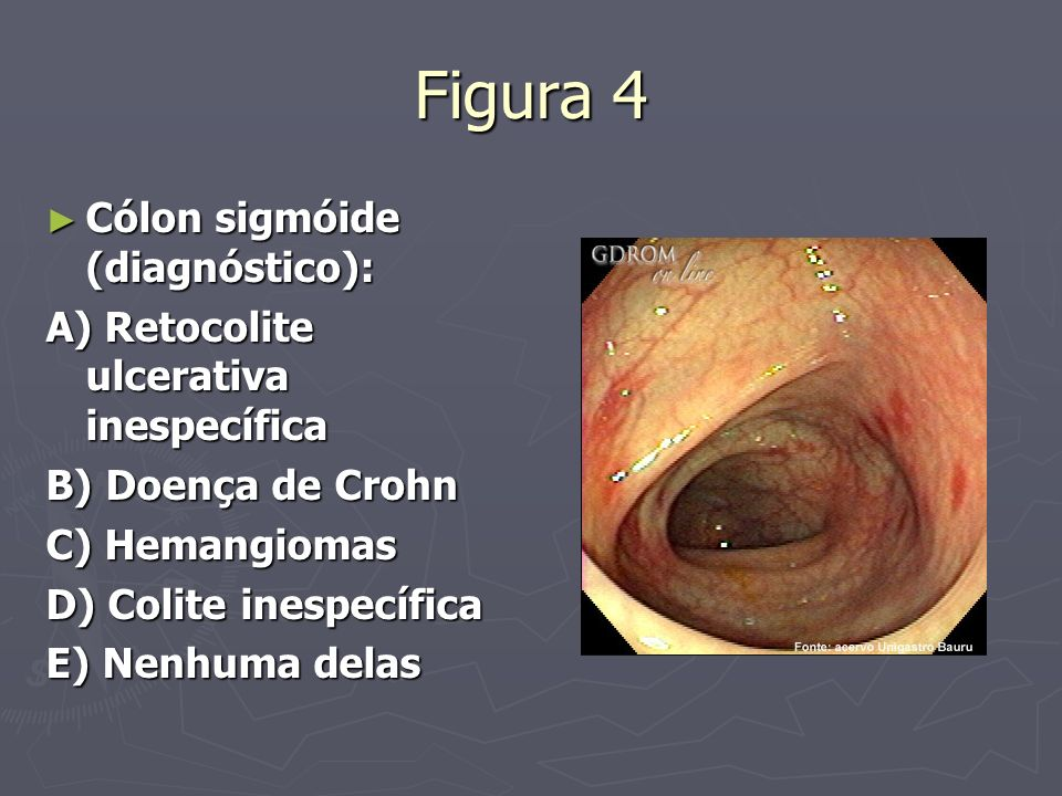 Figura 4 Cólon sigmóide (diagnóstico): Cólon sigmóide (diagnóstico): A) Retocolite ulcerativa inespecífica B) Doença de Crohn C) Hemangiomas D) Colite