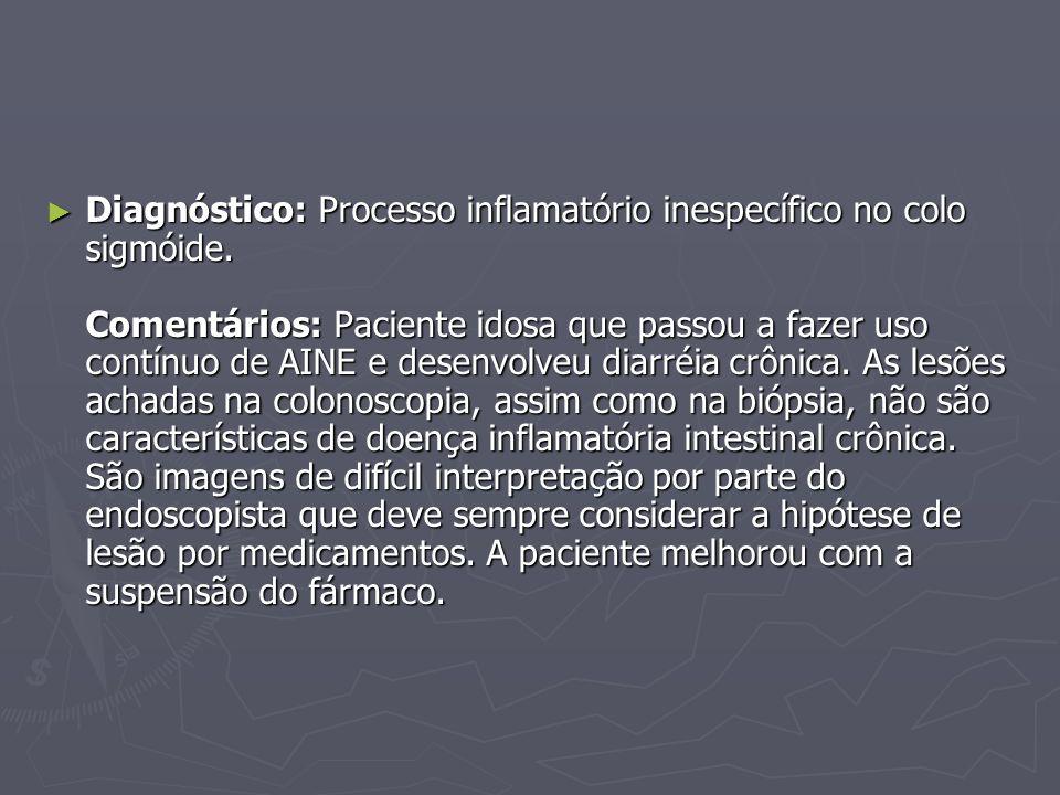 Diagnóstico: Processo inflamatório inespecífico no colo sigmóide. Comentários: Paciente idosa que passou a fazer uso contínuo de AINE e desenvolveu di