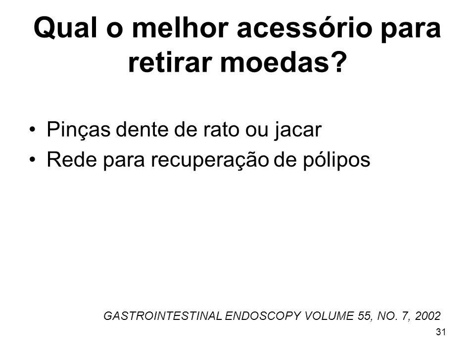Qual o melhor acessório para retirar moedas? Pinças dente de rato ou jacar Rede para recuperação de pólipos GASTROINTESTINAL ENDOSCOPY VOLUME 55, NO.