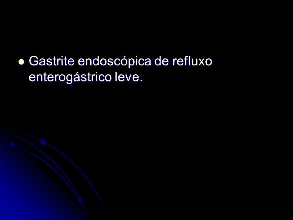 Gastrite endoscópica de refluxo enterogástrico leve. Gastrite endoscópica de refluxo enterogástrico leve.