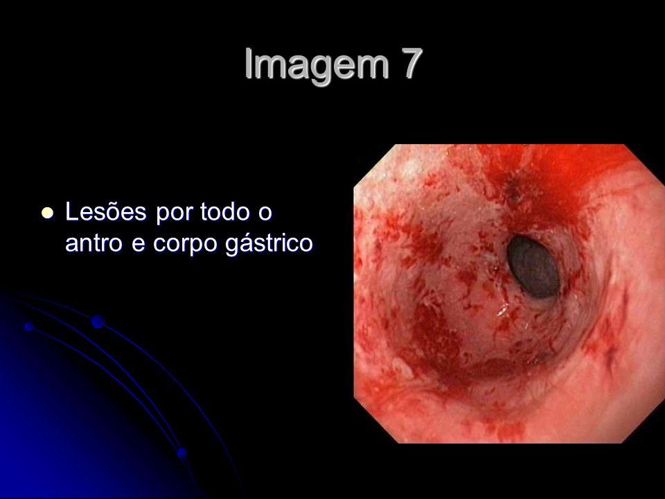 Imagem 7 Lesões por todo o antro e corpo gástrico Lesões por todo o antro e corpo gástrico