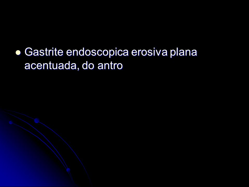 Gastrite endoscopica erosiva plana acentuada, do antro Gastrite endoscopica erosiva plana acentuada, do antro
