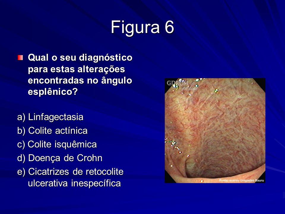 Figura 6 Qual o seu diagnóstico para estas alterações encontradas no ângulo esplênico? Qual o seu diagnóstico para estas alterações encontradas no âng