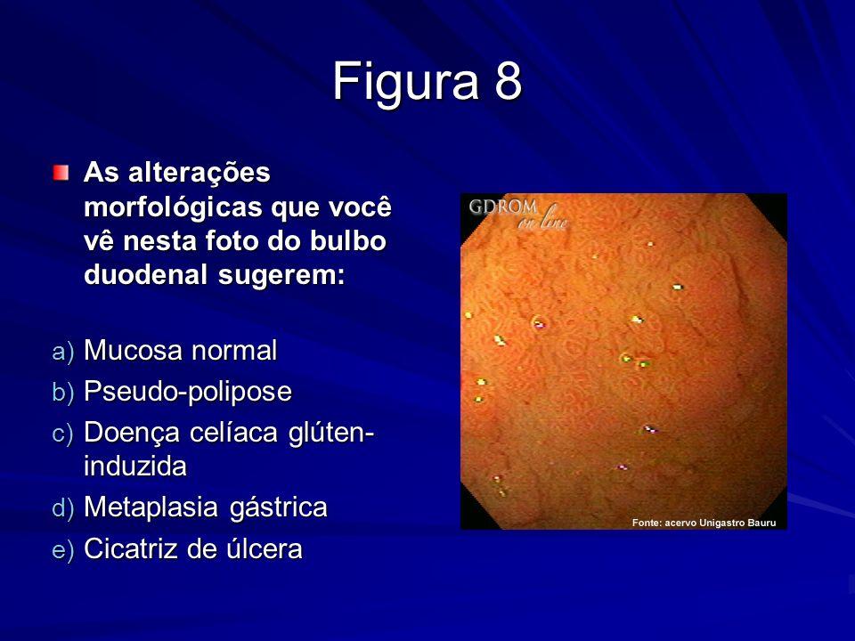 Figura 8 As alterações morfológicas que você vê nesta foto do bulbo duodenal sugerem: As alterações morfológicas que você vê nesta foto do bulbo duode