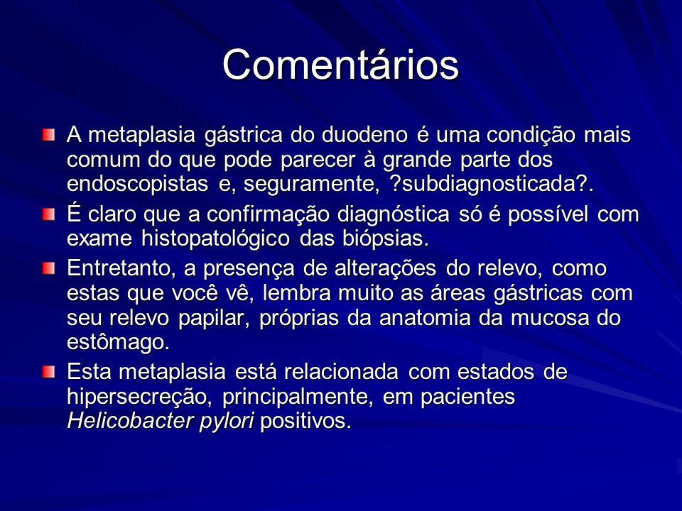 Comentários A metaplasia gástrica do duodeno é uma condição mais comum do que pode parecer à grande parte dos endoscopistas e, seguramente, ?subdiagno