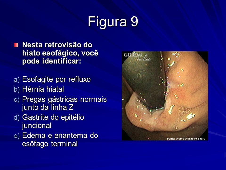 Figura 9 Nesta retrovisão do hiato esofágico, você pode identificar: Nesta retrovisão do hiato esofágico, você pode identificar: a) Esofagite por refl