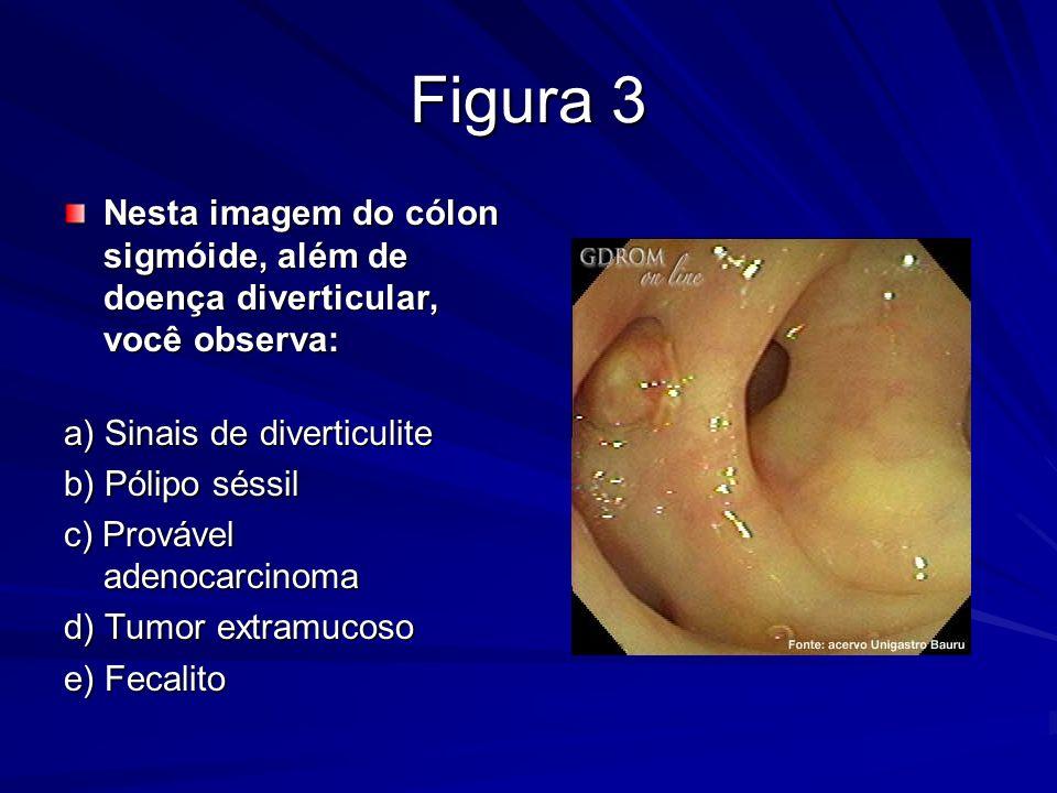 Figura 3 Nesta imagem do cólon sigmóide, além de doença diverticular, você observa: Nesta imagem do cólon sigmóide, além de doença diverticular, você