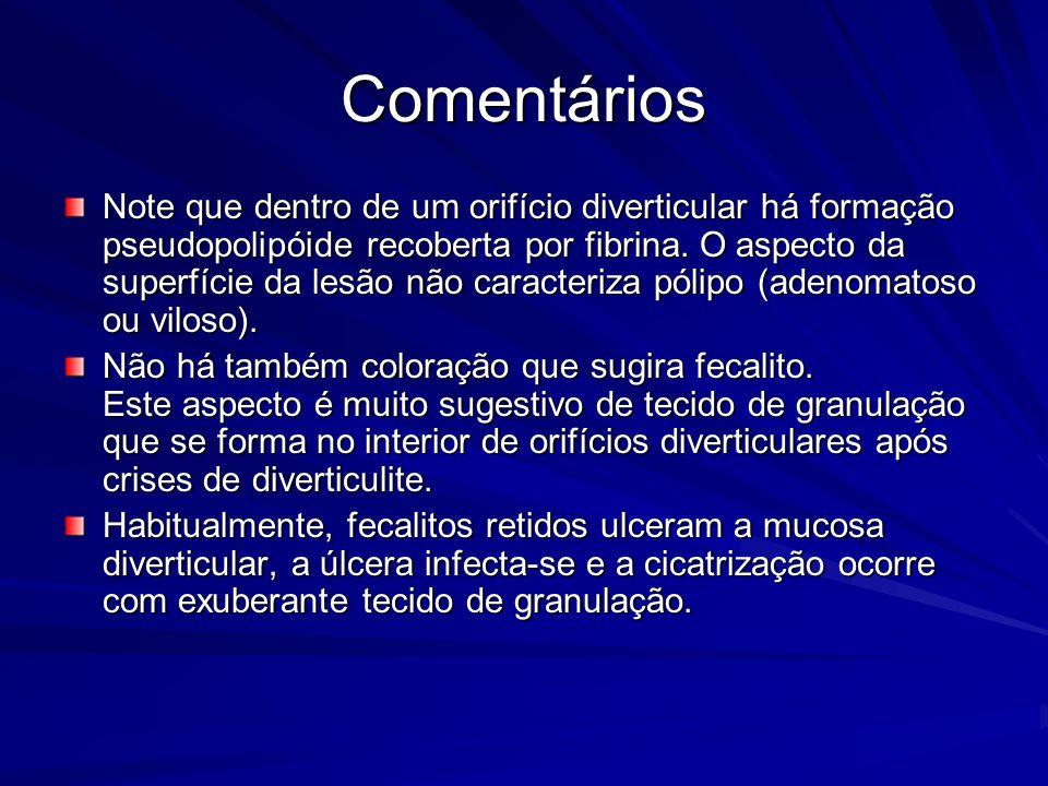 Comentários A metaplasia gástrica do duodeno é uma condição mais comum do que pode parecer à grande parte dos endoscopistas e, seguramente, ?subdiagnosticada?.