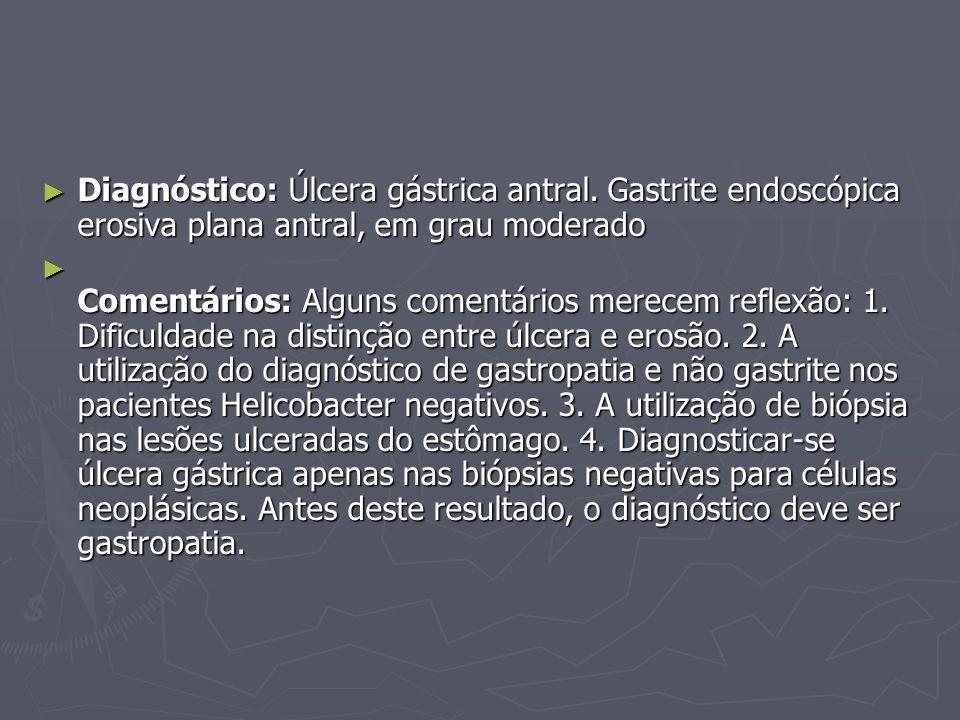 Diagnóstico: Úlcera gástrica antral. Gastrite endoscópica erosiva plana antral, em grau moderado Diagnóstico: Úlcera gástrica antral. Gastrite endoscó