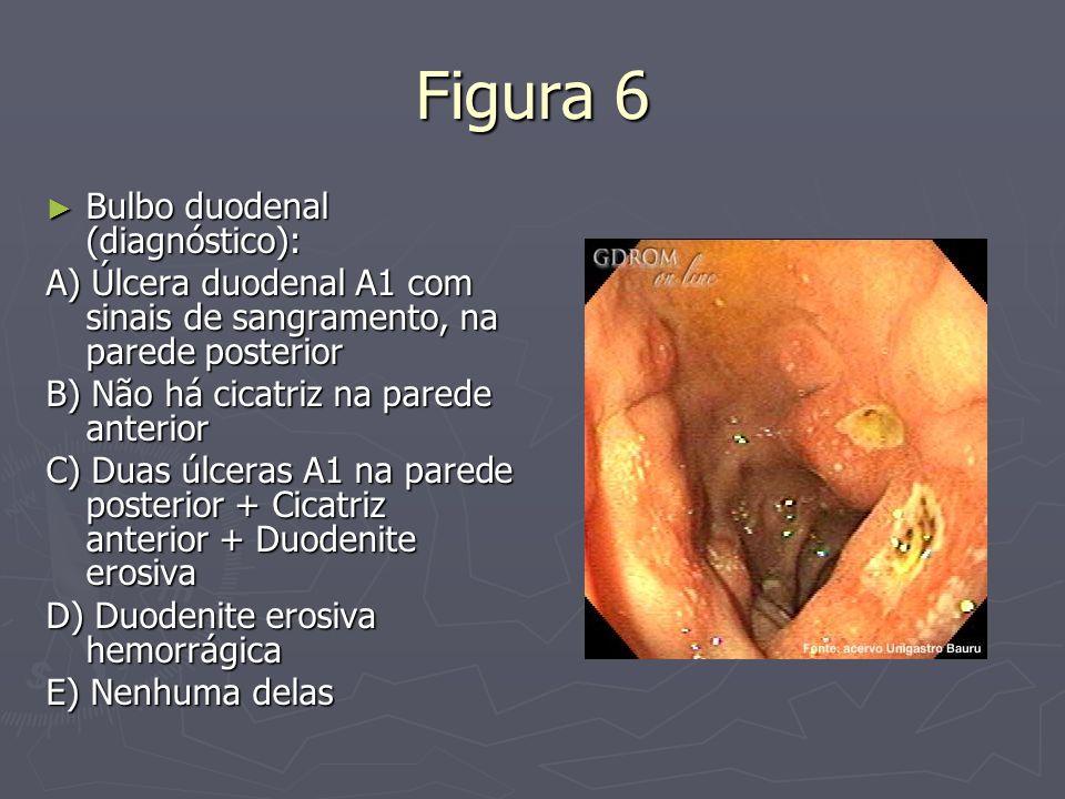 Figura 6 Bulbo duodenal (diagnóstico): Bulbo duodenal (diagnóstico): A) Úlcera duodenal A1 com sinais de sangramento, na parede posterior B) Não há ci