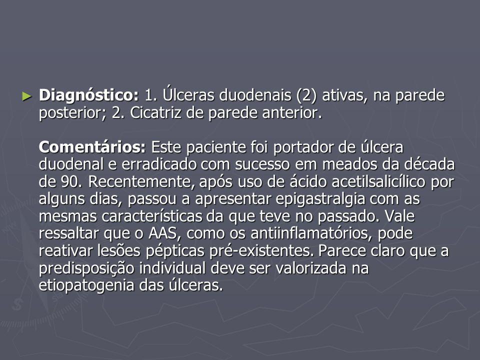 Diagnóstico: 1. Úlceras duodenais (2) ativas, na parede posterior; 2. Cicatriz de parede anterior. Comentários: Este paciente foi portador de úlcera d