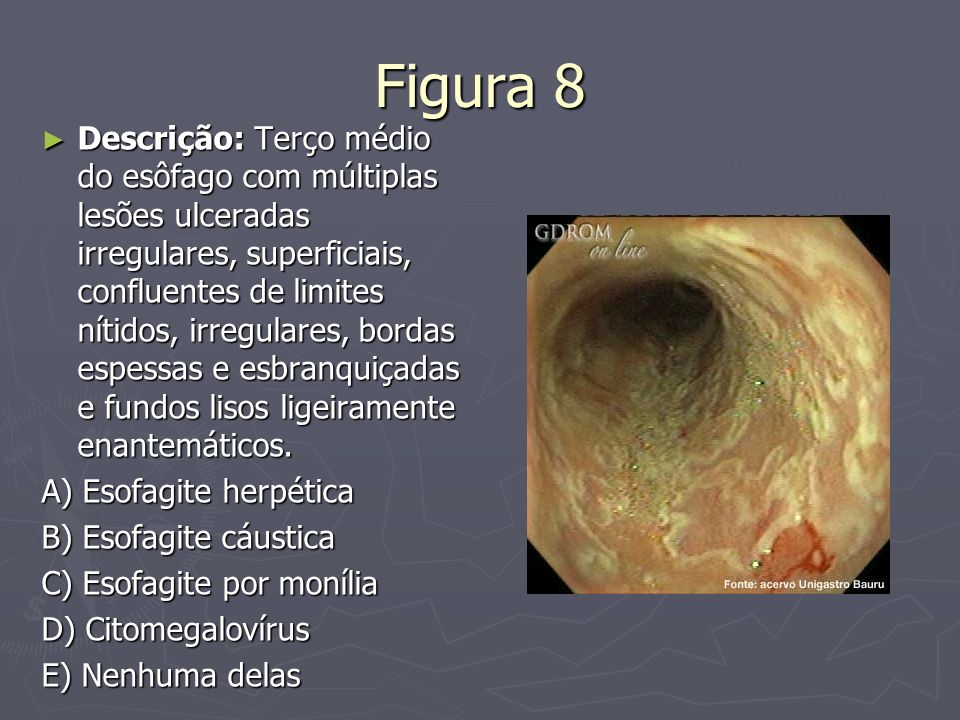 Figura 8 Descrição: Terço médio do esôfago com múltiplas lesões ulceradas irregulares, superficiais, confluentes de limites nítidos, irregulares, bord