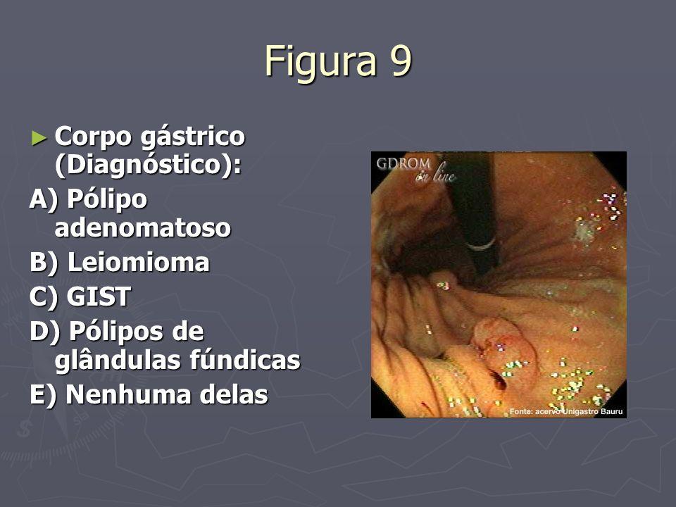 Figura 9 Corpo gástrico (Diagnóstico): Corpo gástrico (Diagnóstico): A) Pólipo adenomatoso B) Leiomioma C) GIST D) Pólipos de glândulas fúndicas E) Ne