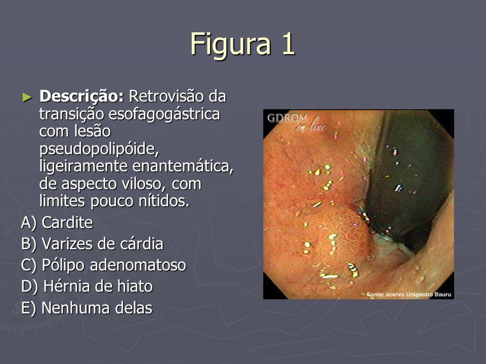 Figura 1 Descrição: Retrovisão da transição esofagogástrica com lesão pseudopolipóide, ligeiramente enantemática, de aspecto viloso, com limites pouco
