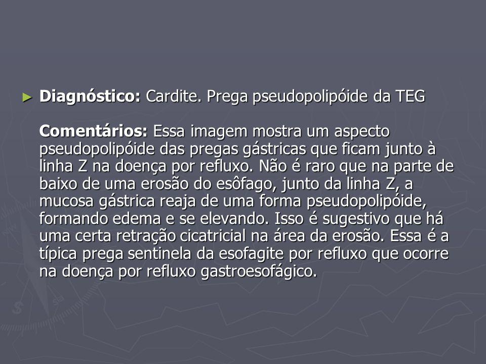 Diagnóstico: Cardite. Prega pseudopolipóide da TEG Comentários: Essa imagem mostra um aspecto pseudopolipóide das pregas gástricas que ficam junto à l