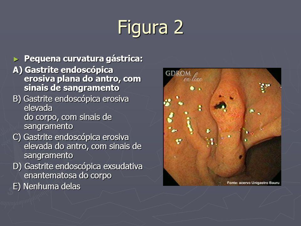 Figura 2 Pequena curvatura gástrica: Pequena curvatura gástrica: A) Gastrite endoscópica erosiva plana do antro, com sinais de sangramento B) Gastrite