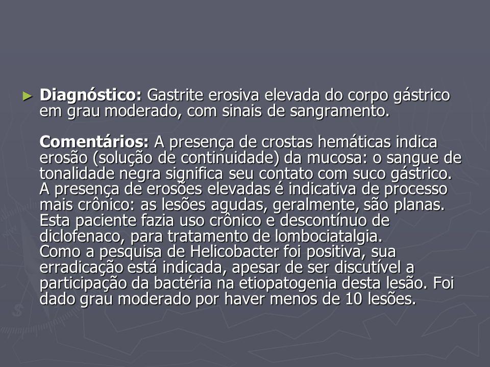 Diagnóstico: Gastrite erosiva elevada do corpo gástrico em grau moderado, com sinais de sangramento. Comentários: A presença de crostas hemáticas indi