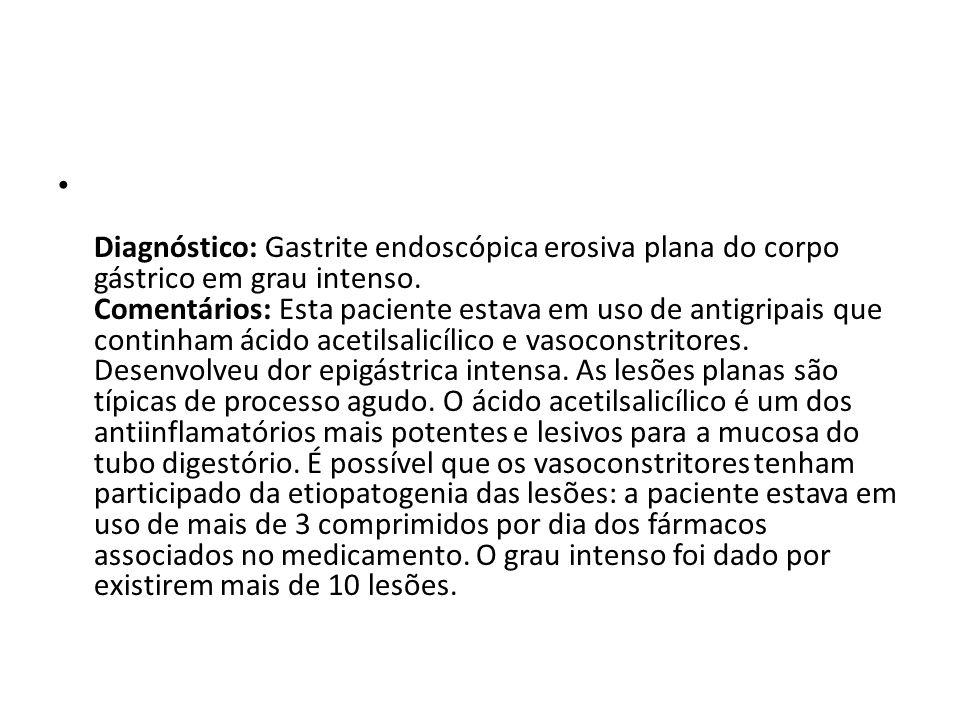 Diagnóstico: Gastrite endoscópica erosiva plana do corpo gástrico em grau intenso. Comentários: Esta paciente estava em uso de antigripais que continh