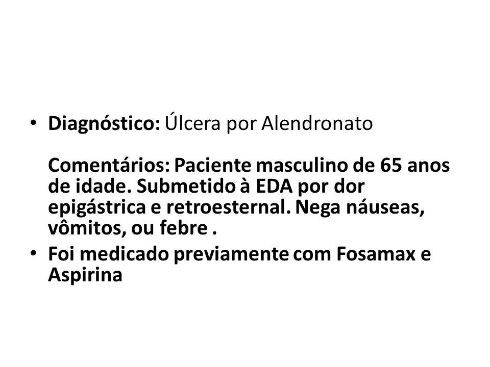 Diagnóstico: Úlcera por Alendronato Comentários: Paciente masculino de 65 anos de idade. Submetido à EDA por dor epigástrica e retroesternal. Nega náu