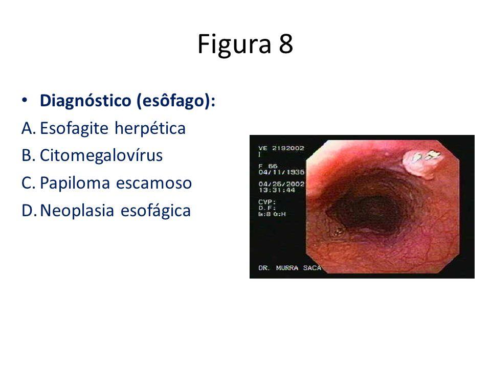 Figura 8 Diagnóstico (esôfago): A.Esofagite herpética B.Citomegalovírus C.Papiloma escamoso D.Neoplasia esofágica
